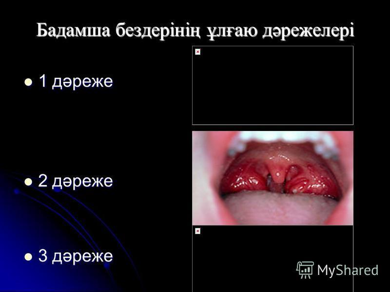 Бадамша бездерінің ұлғаю дәрежелері 1 дәреже 1 дәреже 2 дәреже 2 дәреже 3 дәреже 3 дәреже