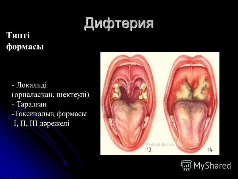 Дифтерия Типті формасы - Локальді (орналасқан, шектеулі) - Таралған -Токсикалық формасы I, II, ІІІ дәрежелі