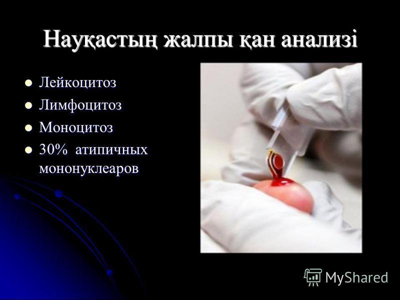Науқастың жалпы қан анализі Лейкоцитоз Лейкоцитоз Лимфоцитоз Лимфоцитоз Моноцитоз Моноцитоз 30% атипичных мононуклеаров 30% атипичных мононуклеаров