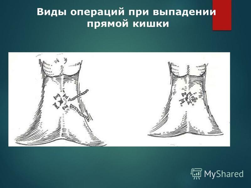 Виды операций при выпадении прямой кишки