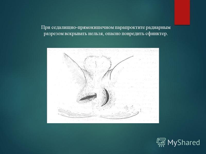 При седалищно-прямокишечном парапроктите радиарным разрезом вскрывать нельзя, опасно повредить сфинктер.