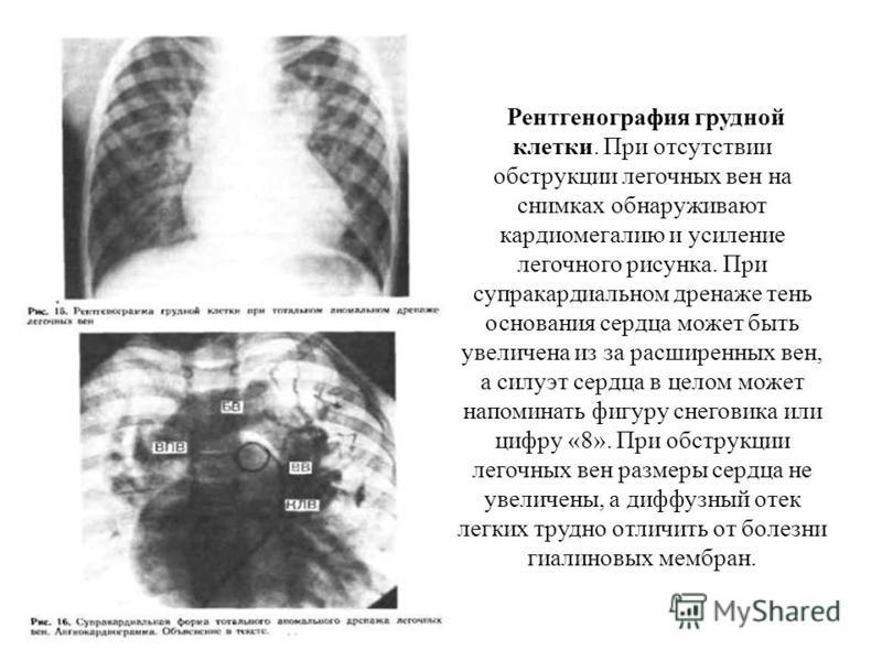 Рентгенография грудной клетки. При отсутствии обструкции легочных вен на снимках обнаруживают кардиомегалию и усиление легочного рисунка. При супракардиальном дренаже тень основания сердца может быть увеличена из за расширенных вен, а силуэт сердца в