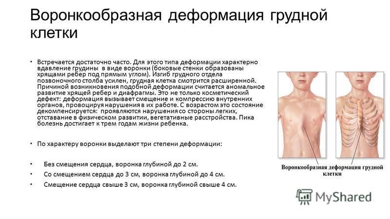 Воронкообразная деформация грудной клетки Встречается достаточно часто. Для этого типа деформации характерно вдавление грудины в виде воронки (боковые стенки образованы хрящами ребер под прямым углом). Изгиб грудного отдела позвоночного столба усилен