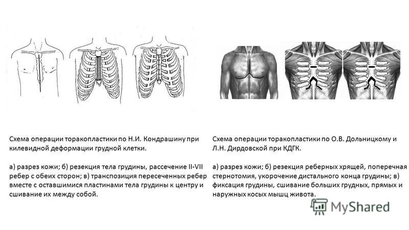 Схема операции торакопластики по Н.И. Кондрашину при килевидной деформации грудной клетки. а) разрез кожи; б) резекция тела грудины, рассечение II-VII ребер с обеих сторон; в) транспозиция пересеченных ребер вместе с оставшимися пластинами тела груди