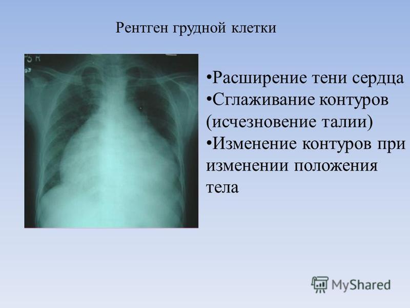 Расширение тени сердца Сглаживание контуров (исчезновение талии) Изменение контуров при изменении положения тела Рентген грудной клетки