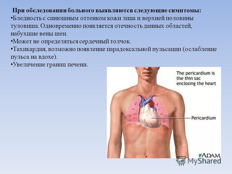 При обследовании больного выявляются следующие симптомы: Бледность с синюшным оттенком кожи лица и верхней половины туловища. Одновременно появляется отечность данных областей, набухшие вены шеи. Может не определяться сердечный толчок. Тахикардия, во