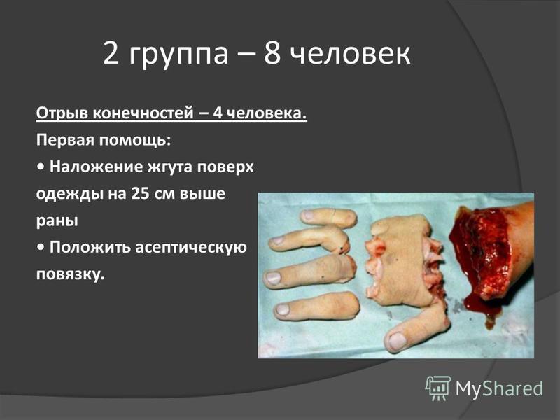 2 группа – 8 человек Отрыв конечностей – 4 человека. Первая помощь: Наложение жгута поверх одежды на 25 см выше раны Положить асептическую повязку.