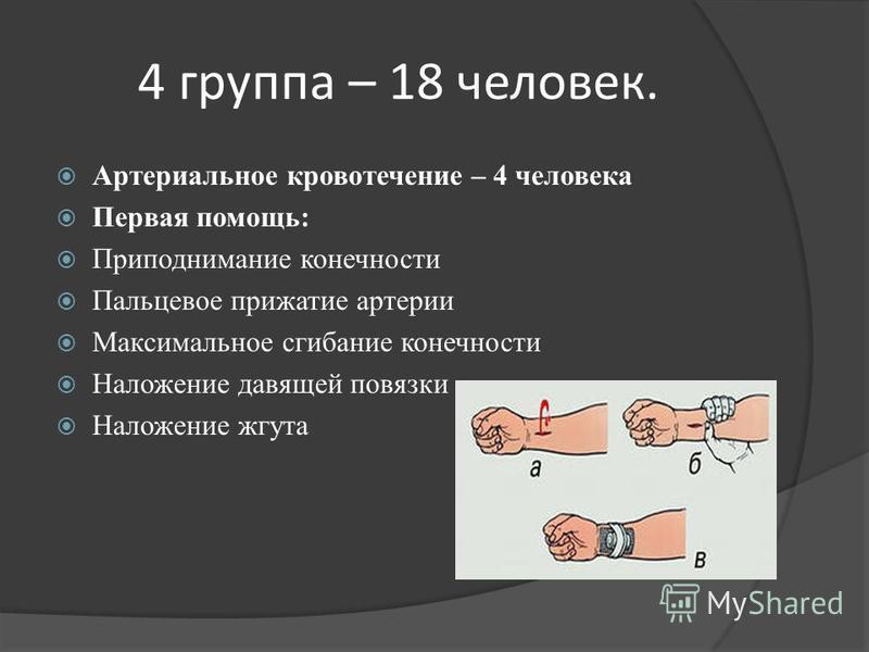 4 группа – 18 человек. Артериальное кровотечение – 4 человека Первая помощь: Приподнимание конечности Пальцевое прижатие артерии Максимальное сгибание конечности Наложение давящей повязки Наложение жгута