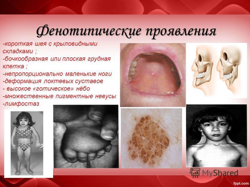 Фенотипические проявления -короткая шея с крыловидными складками ; -бочкообразная или плоская грудная клетка ; -непропорционально маленькие ноги -деформация локтевых суставов - высокое «готическое» нёбо -множественные пигментные невусы -лимфостаз