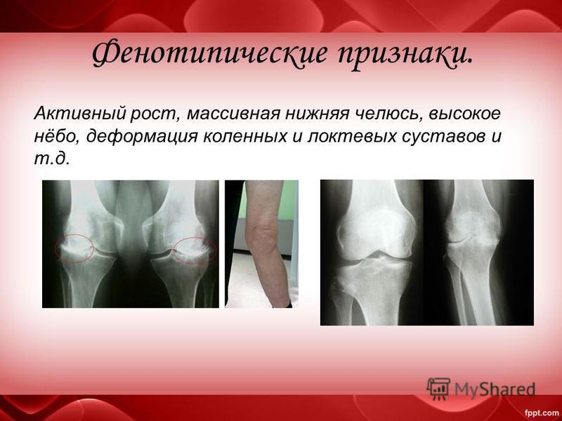 Фенотипические признаки. Активный рост, массивная нижняя челюсть, высокое нёбо, деформация коленных и локтевых суставов и т.д.