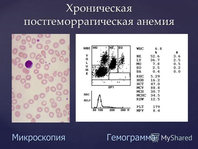 Микроскопия Гемограмма