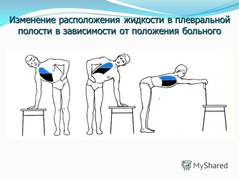 Изменение расположения жидкости в плевральной полости в зависимости от положения больного