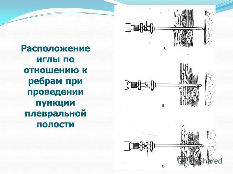 Расположение иглы по отношению к ребрам при проведении пункции плевральной полости