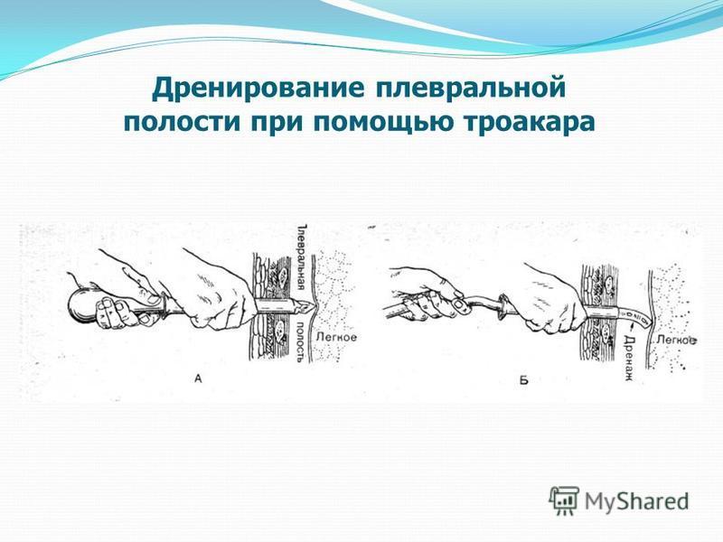 Дренирование плевральной полости при помощью троакара