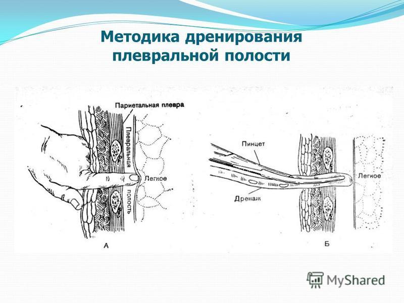 Методика дренирования плевральной полости