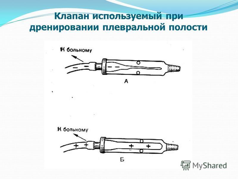 Клапан используемый при дренировании плевральной полости