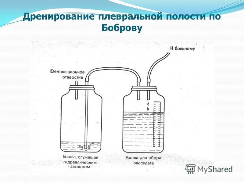 Дренирование плевральной полости по Боброву