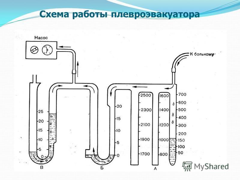 Схема работы плевроэвакуатора