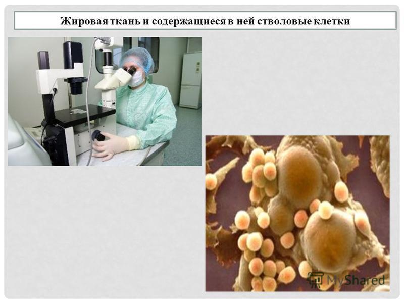 Жировая ткань и содержащиеся в ней стволовые клетки