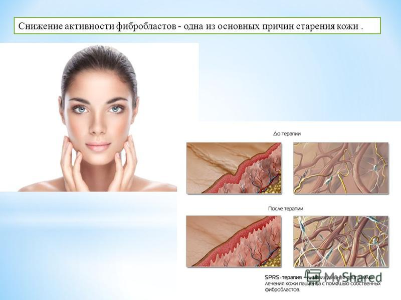 Снижение активности фибробластов - одна из основных причин старения кожи.