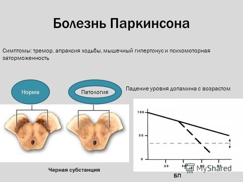 БП Черная субстанция Норма Патология Падение уровня дофамина с возрастом Симптомы: тремор, апраксия ходьбы, мышечный гипертонус и психомоторная заторможенность