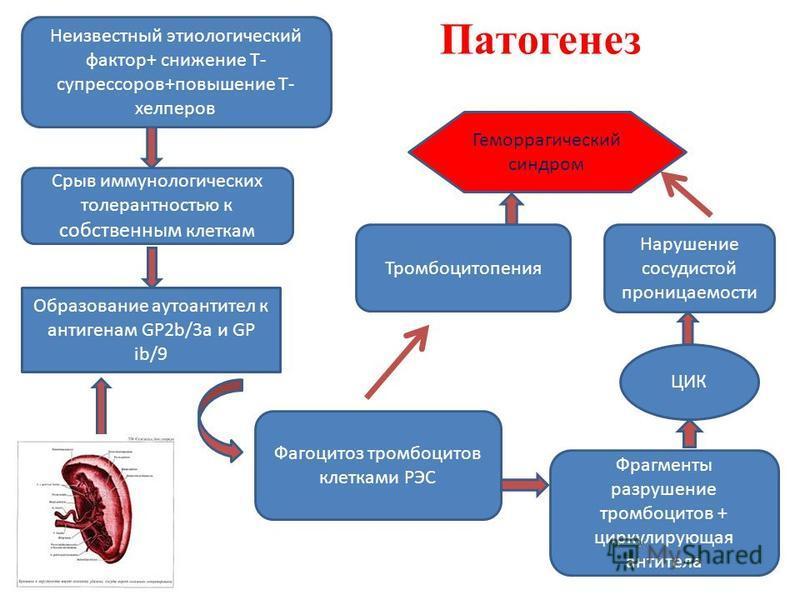 Срыв иммунологических толерантностью к собственным клеткам Образование аутоантител к антигенам GP2b/3a и GP ib/9 Фрагменты разрушение тромбоцитов + циркулирующая антитела Тромбоцитопения ЦИК Нарушение сосудистой проницаемости Геморрагический синдром