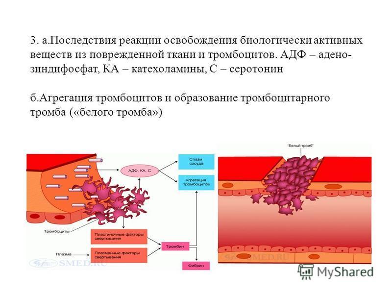 3. а.Последствия реакции освобождения биологически активных веществ из поврежденной ткани и тромбоцитов. АДФ – аденозин дифосфат, КА – катехоламины, С – серотонин б.Агрегация тромбоцитов и образование тромбоцитарного тромба («белого тромба»)
