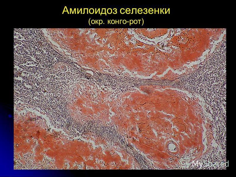 Амилоидоз селезенки (окр. конго-рот)