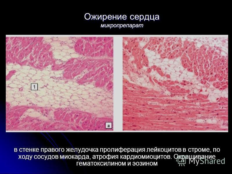 Ожирение сердца микропрепарат в стенке правого желудочка пролиферация лейкоцитов в строме, по ходу сосудов миокарда, атрофия кардиомиоцитов. Окрашивание гематоксилином и эозином