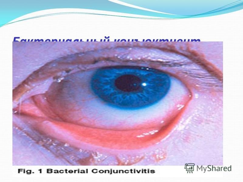 Бактериальный конъюнктивит