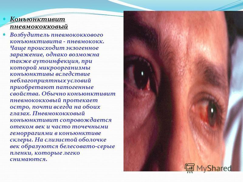 Конъюнктивит пневмококковый Возбудитель пневмококкового конъюнктивита - пневмококк. Чаще происходит экзогенное заражение, однако возможна также аутоинфекция, при которой микроорганизмы конъюнктивы вследствие неблагоприятных условий приобретают патоге