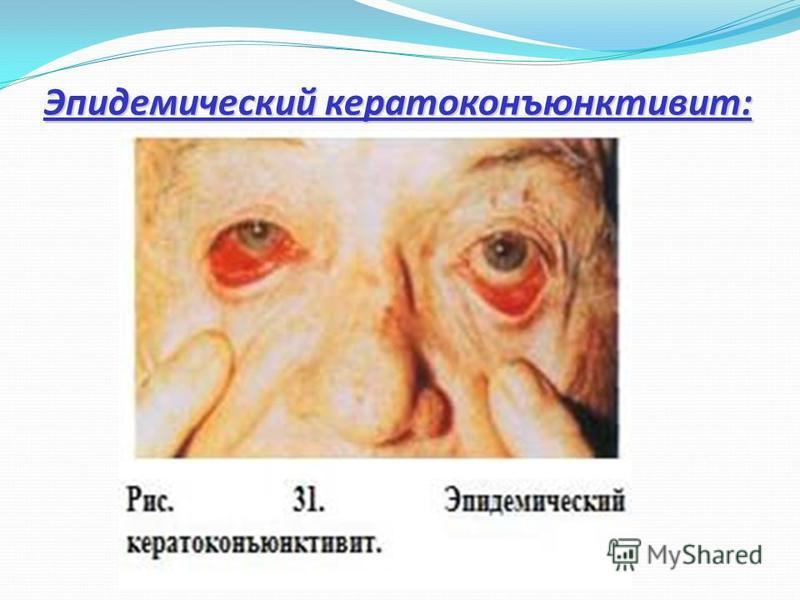 Эпидемический кератоконъюнктивит: