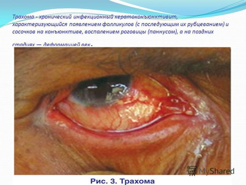 Трахома - хронический инфекционный кератоконъюнктивит, характеризующийся появлением фолликулов (с последующим их рубцеванием) и сосочков на конъюнктиве, воспалением роговицы (паннусом), а на поздних стадиях деформацией век Трахома - хронический инфек