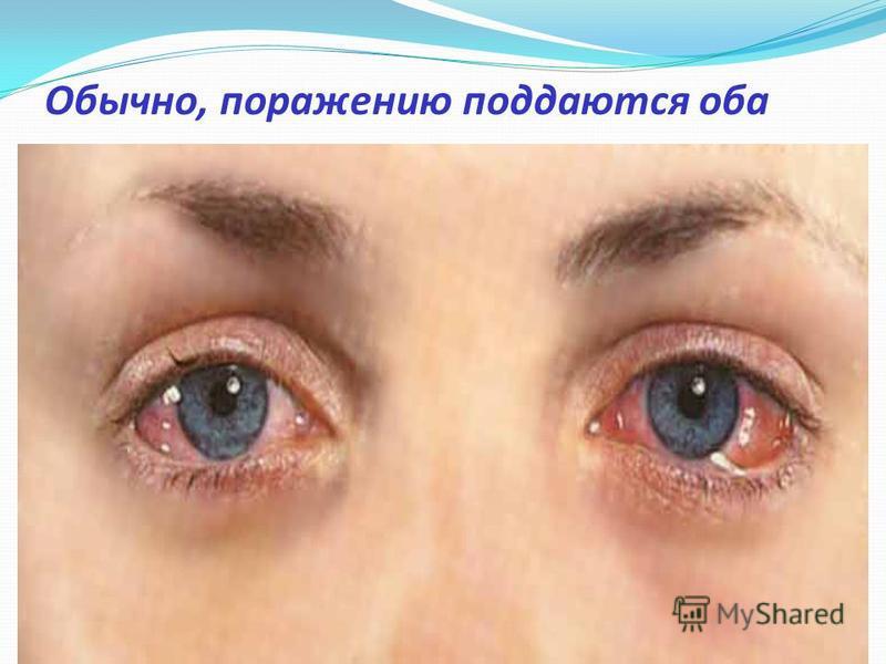 Обычно, поражению поддаются оба глаза