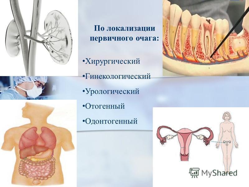 По локализации первичного очага: Хирургический Гинекологический Урологический Отогенный Одонтогенный