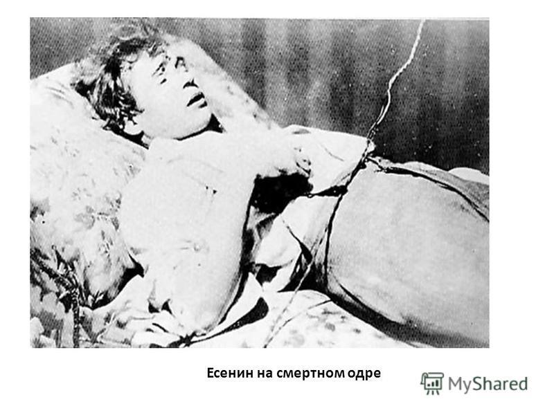 Есенин на смертном одре