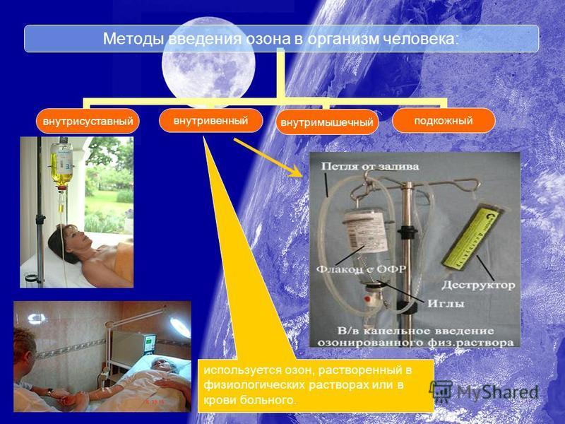 Методы введения озона в организм человека: внутрисуставныйвнутривенныйвнутримышечныйподкожный используется озон, растворенный в физиологических растворах или в крови больного.