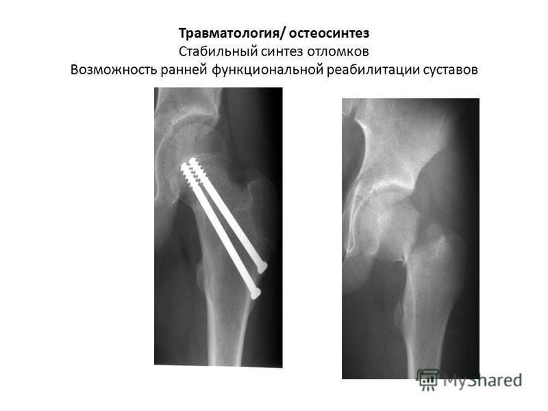 Травматология/ остеосинтез Стабильный синтез отломков Возможность ранней функциональной реабилитации суставов