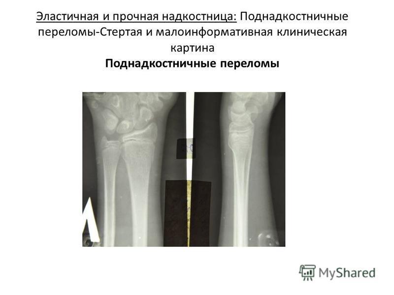 Эластичная и прочная надкостница: Поднадкостничные переломы-Стертая и малоинформативная клиническая картина Поднадкостничные переломы