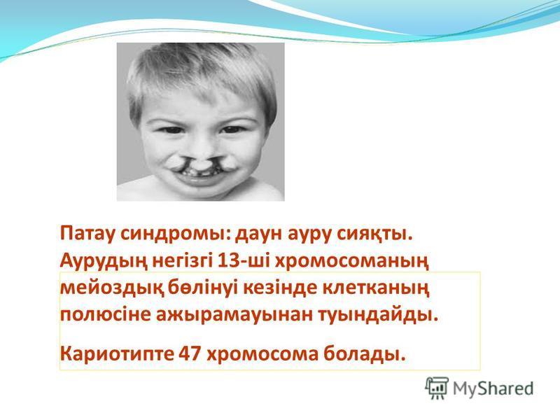 Патау синдромы: даун ауру сияқты. Аурудың негізгі 13-ші хромосоманың мейоздық бөлінуі кезінде клетканың полюсіне ажырамауынан туындайды. Кариотипте 47 хромосома болады.