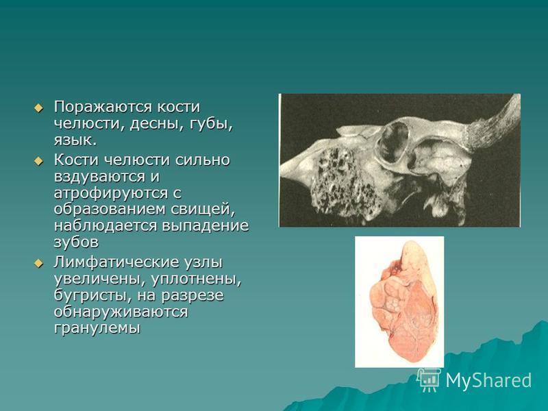 Поражаются кости челюсти, десны, губы, язык. Поражаются кости челюсти, десны, губы, язык. Кости челюсти сильно вздуваются и атрофируются с образованием свищей, наблюдается выпадение зубов Кости челюсти сильно вздуваются и атрофируются с образованием