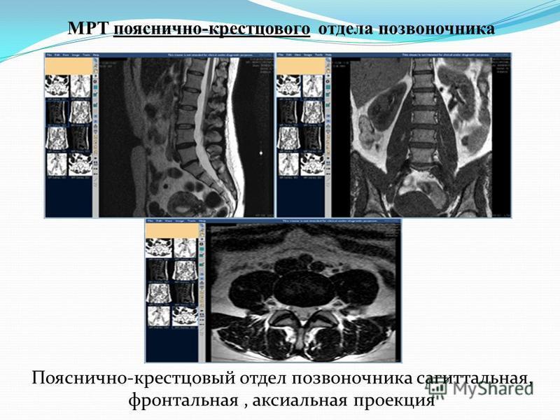 МРТ пояснично-крестцового отдела позвоночника Пояснично-крестцовый отдел позвоночника сагиттальная, фронтальная, аксиальная проекция