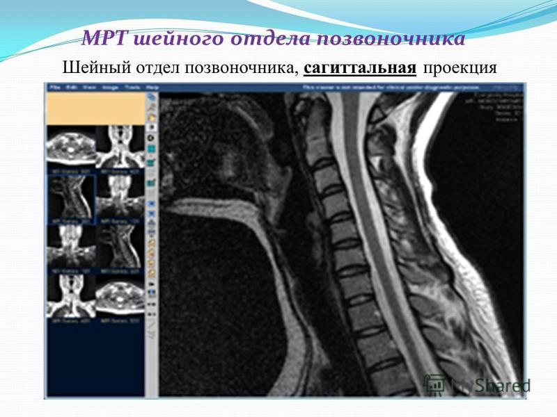 МРТ шейного отдела позвоночника Шейный отдел позвоночника, сагиттальная проекция