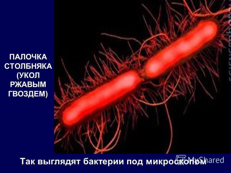 Так выглядят бактерии под микроскопом ПАЛОЧКА СТОЛБНЯКА (УКОЛ РЖАВЫМ ГВОЗДЕМ)