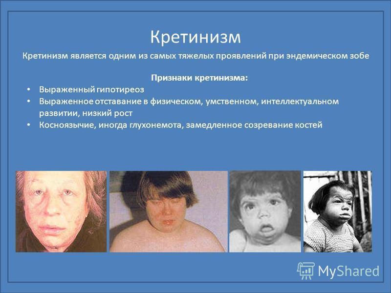 Кретинизм Кретинизм является одним из самых тяжелых проявлений при эндемическом зобе Признаки кретинизма: Выраженный гипотиреоз Выраженное отставание в физическом, умственном, интеллектуальном развитии, низкий рост Косноязычие, иногда глухонемота, за