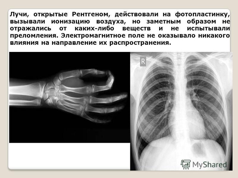 Лучи, открытые Рентгеном, действовали на фотопластинку, вызывали ионизацию воздуха, но заметным образом не отражались от каких-либо веществ и не испытывали преломления. Электромагнитное поле не оказывало никакого влияния на направление их распростран