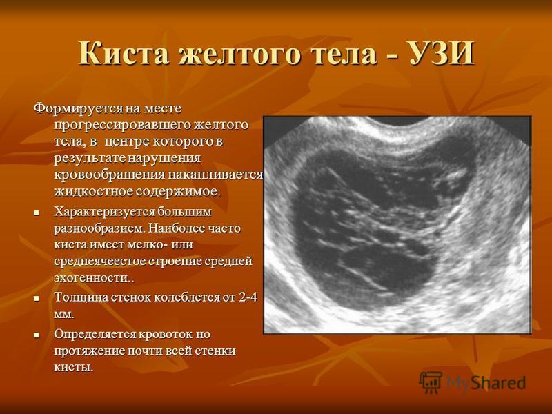 Киста желтого тела - УЗИ Формируется на месте прогрессировавшего желтого тела, в центре которого в результате нарушения кровообращения накапливается жидкостное содержимое. Характеризуется большим разнообразием. Наиболее часто киста имеет мелко- или с