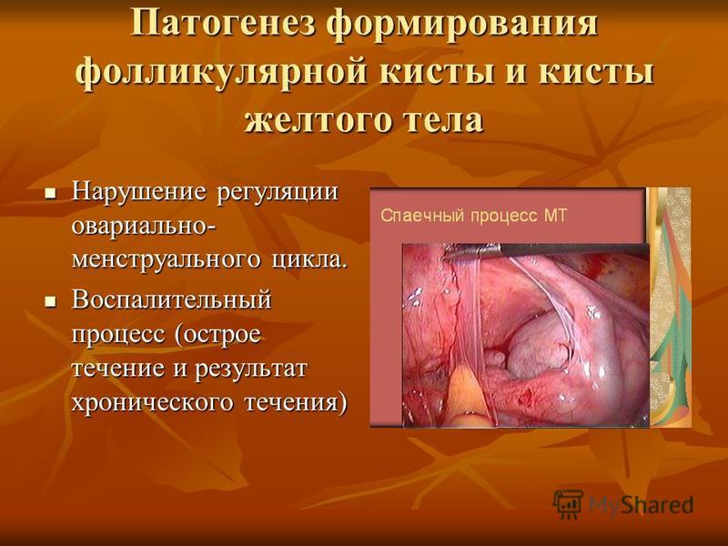 Патогенез формирования фолликулярной кисты и кисты желтого тела Нарушение регуляции овариально- менструального цикла. Нарушение регуляции овариально- менструального цикла. Воспалительный процесс (острое течение и результат хронического течения) Воспа