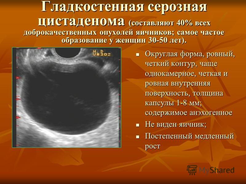 Гладкостенная серозная цистаденома (составляют 40% всех доброкачественных опухолей яичников; самое частое образование у женщин 30-50 лет). Округлая форма, ровный, четкий контур, чаще однокамерное, четкая и ровная внутренняя поверхность, толщина капсу