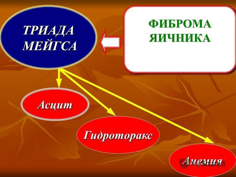 ФИБРОМАЯИЧНИКАФИБРОМАЯИЧНИКАТРИАДА МЕЙГСА МЕЙГСА Асцит Гидроторакс Анемия